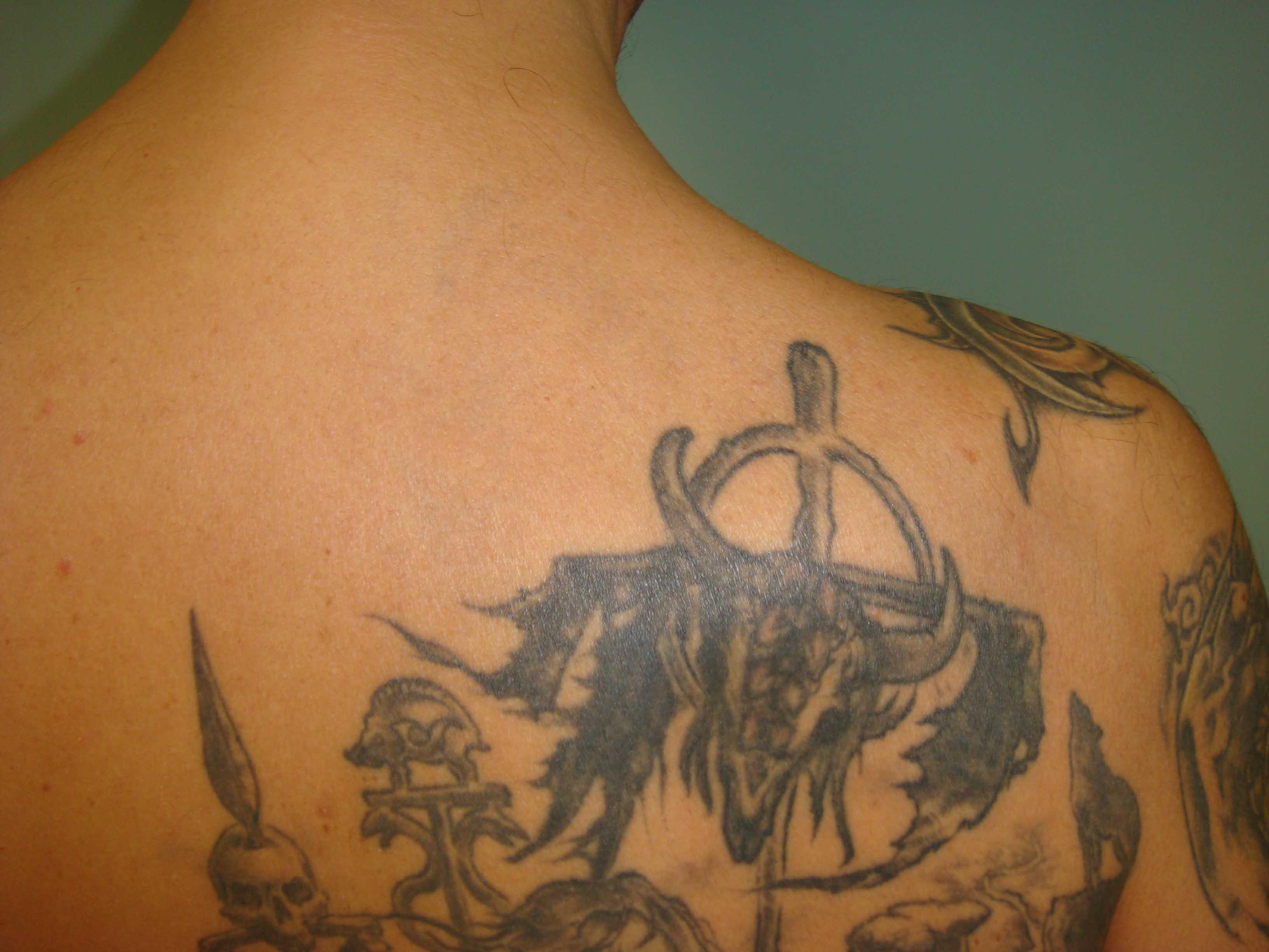 Rimozioni tatuaggi Roma   Dott. Erik Geiger